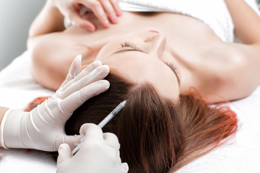 Narbenbildung nach Haartransplantation: Wie groß sind die Risiken?