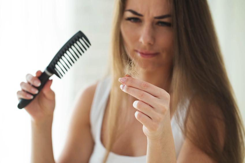 Alopecia Androgenetica – Diagnostik und Therapie im Detail